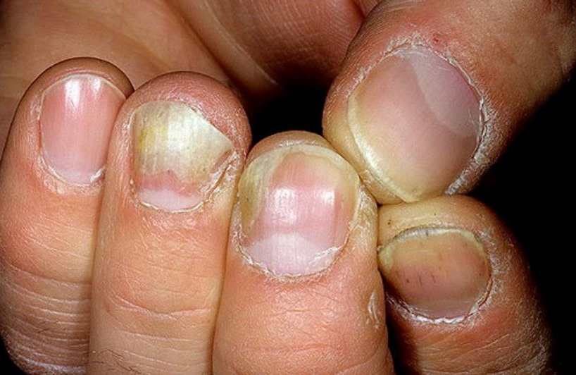 Белые ногти значение