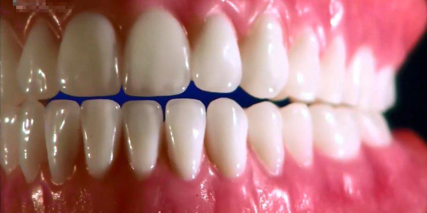 Зубные коронки: для чего нужны, основные типы